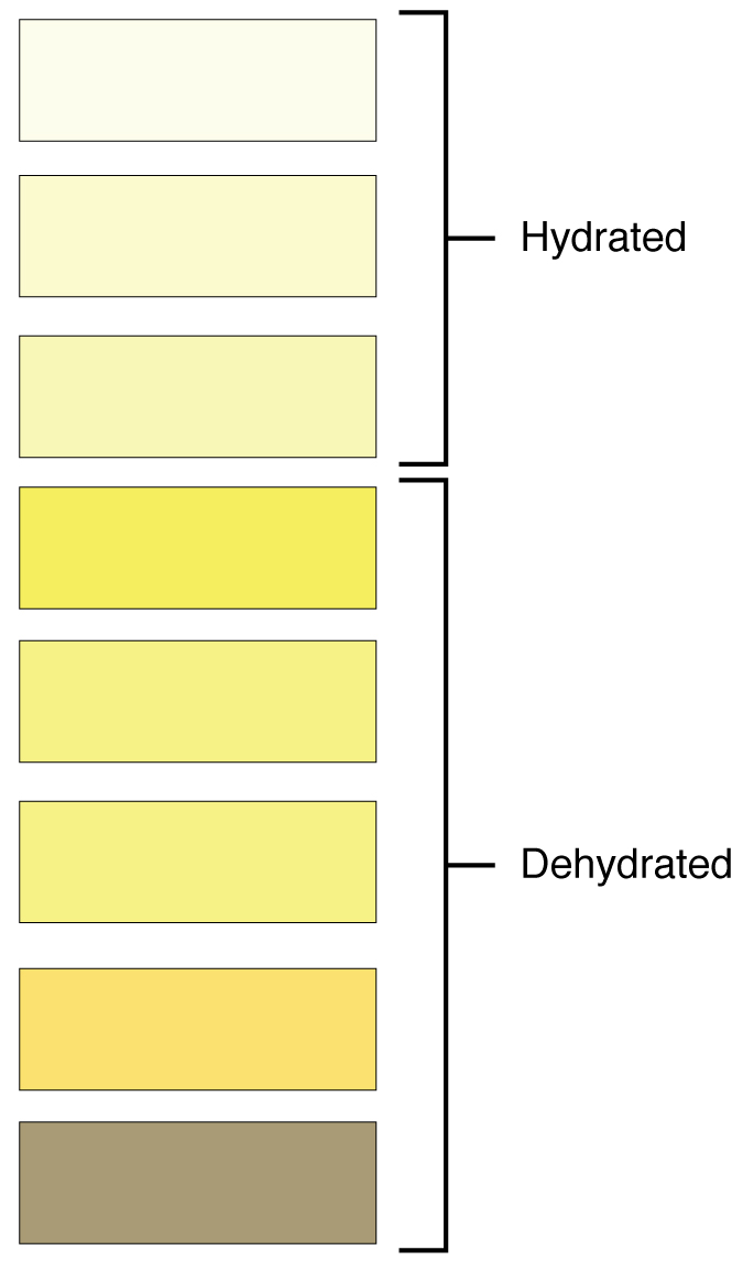2601_Urine_Color_Chart.jpg